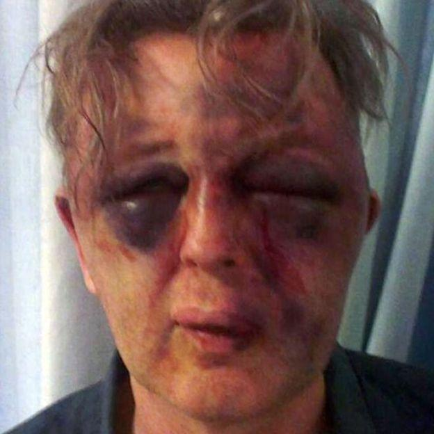 Paul Kohler was brutally beaten when his Wimbledon home was burgled in 2014. Credit: Paul Kohler. Free for use by all BBC wire partners.