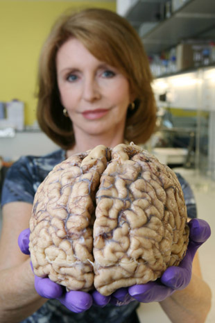 Jane Asher calls for donors to Parkinson's society brain bank